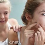 6 Hal yang harus dihindari saat terkena gangguan jerawat